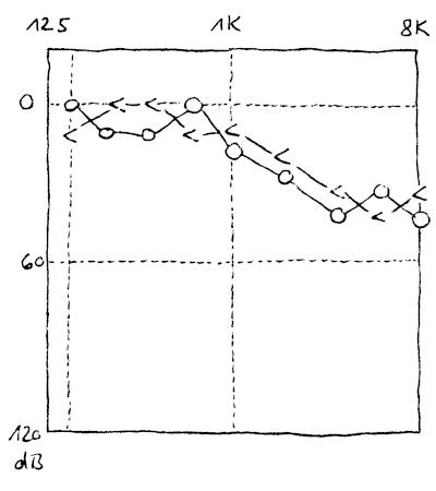 Audiogramm bei dem die Hörschwelle der Luftleitung und der Knochenleitung mehr oder weniger überlagern.