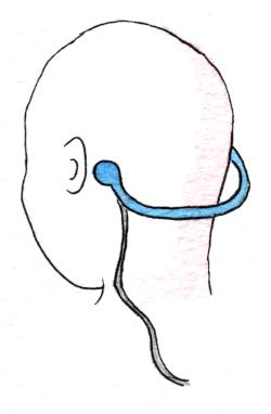 Knochenleitungskopfhörer welcher hinterm Ohr angesetzt wird und mit einem Kabel verbunden ist.