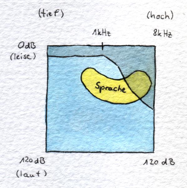 Ein Audiogramm mit Sprachbanane, welche von einem Hochtonverlust abgeschnitten wird